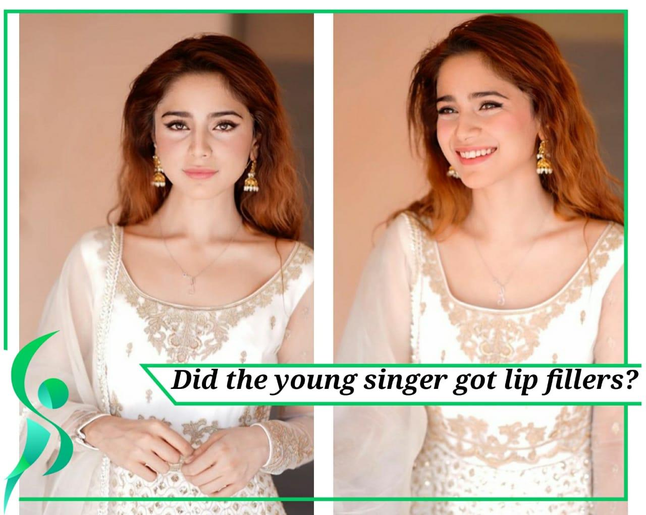 Aima Baig got lip fillers.